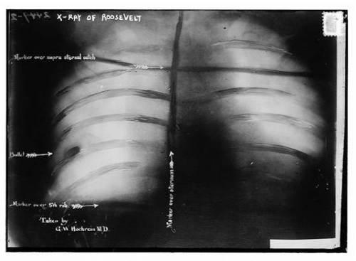 roosevelt lung